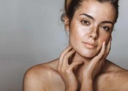 Nomelan Cafeico - Najlepszy zestaw peelingów medycznych do walki z przebarwieniami skóry.